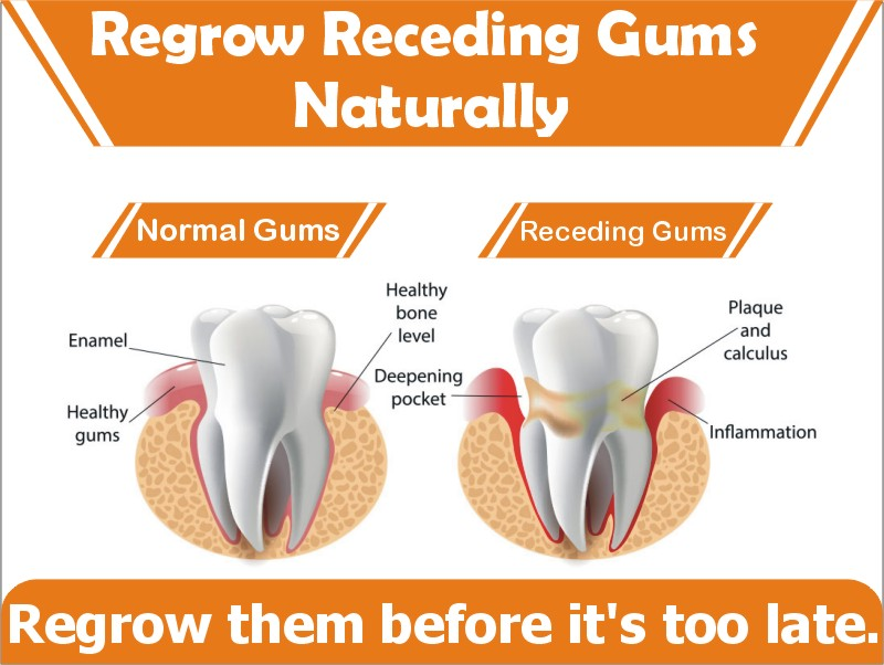 Can Gum Disease Be Reversed